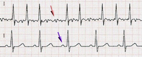 """<span data-sheets-value=""""{""""1"""":2,""""2"""":""""EKG of atrial fibrillation (top) and normal sinus rhythm (bottom). The purple arrow indicates a P wave, which is lost in atrial fibrillation.""""}"""" data-sheets-userformat=""""{""""2"""":33555201,""""3"""":{""""1"""":0},""""11"""":4,""""12"""":0,""""28"""":1}"""">EKG of atrial fibrillation (top) and normal sinus rhythm (bottom). The purple arrow indicates a P wave, which is lost in atrial fibrillation.</span>"""