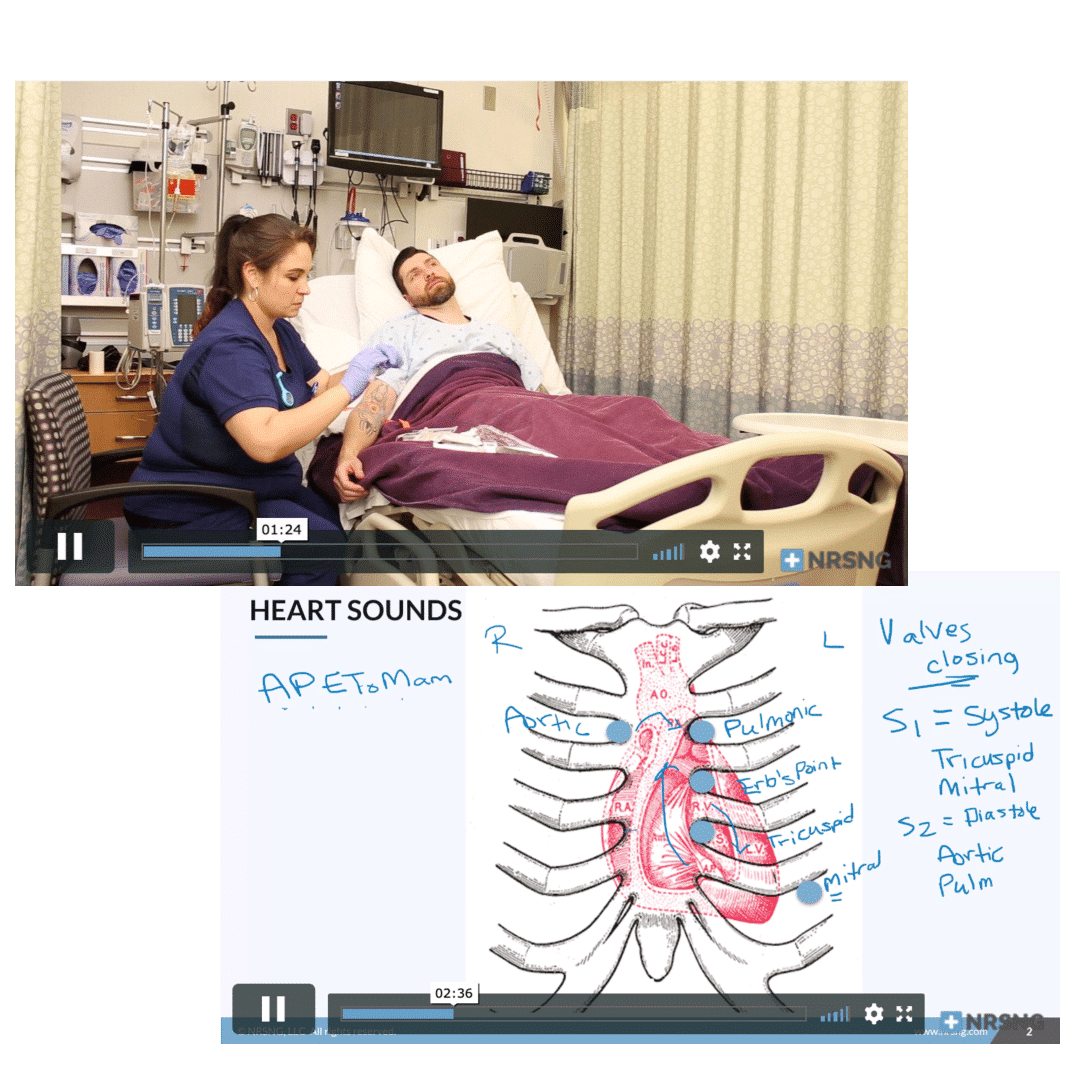 video lessons on nursing.com